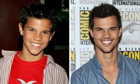 antes-e-depois-taylor-lautner-28697
